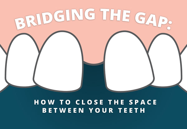Bridging gap teeth header