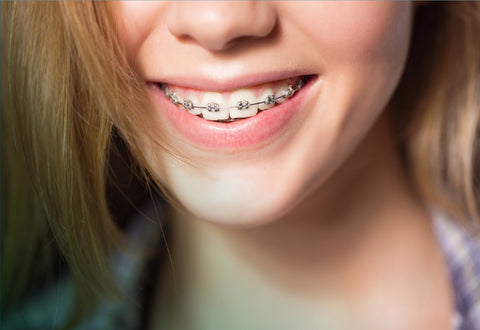 Close up of girl with braces