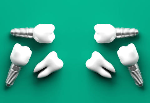 Teeth implants mockup