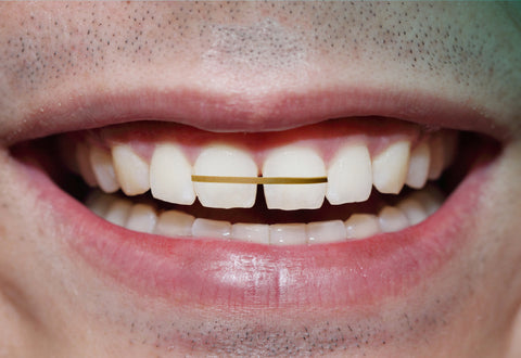 Teeth Gap Bands on teeth