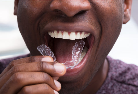 Man putting in a clear aligner