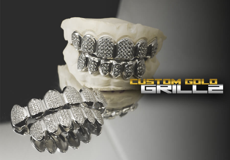 Solid Gold Grillz vs Gold Plated Grillz