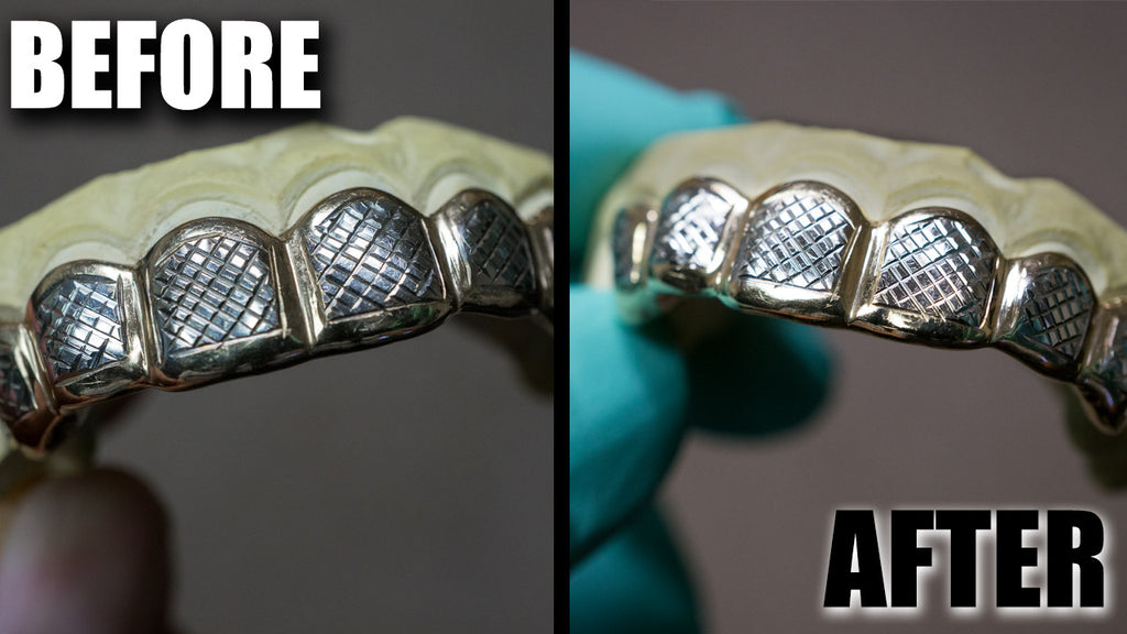 How to clean your solid gold grillz with video instructions how to clean your solid gold grillz with video instructions custom gold grillz solutioingenieria Images