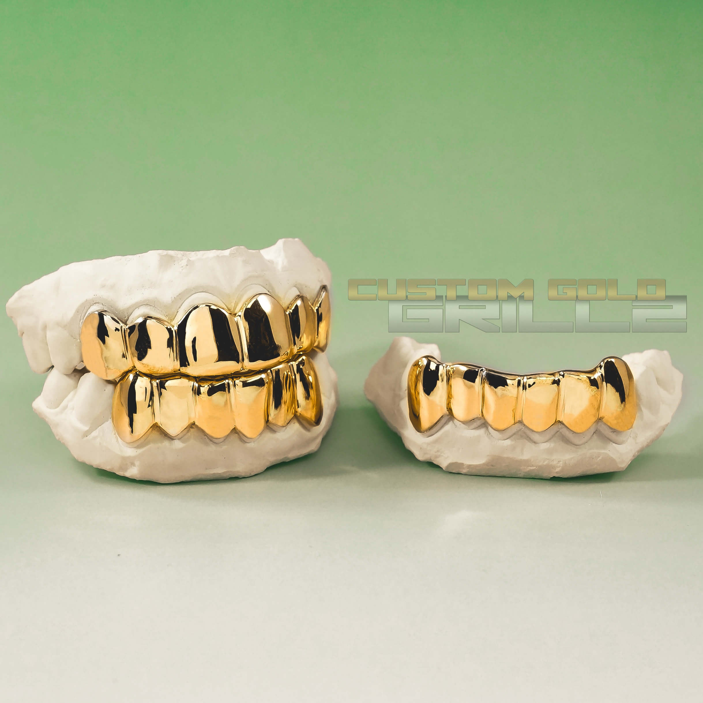 Gold Custom Grillz Set