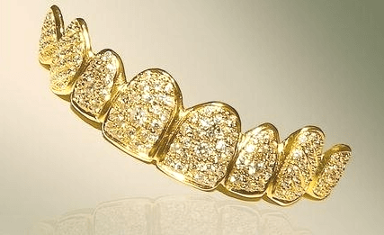 Most Expensive Grillz