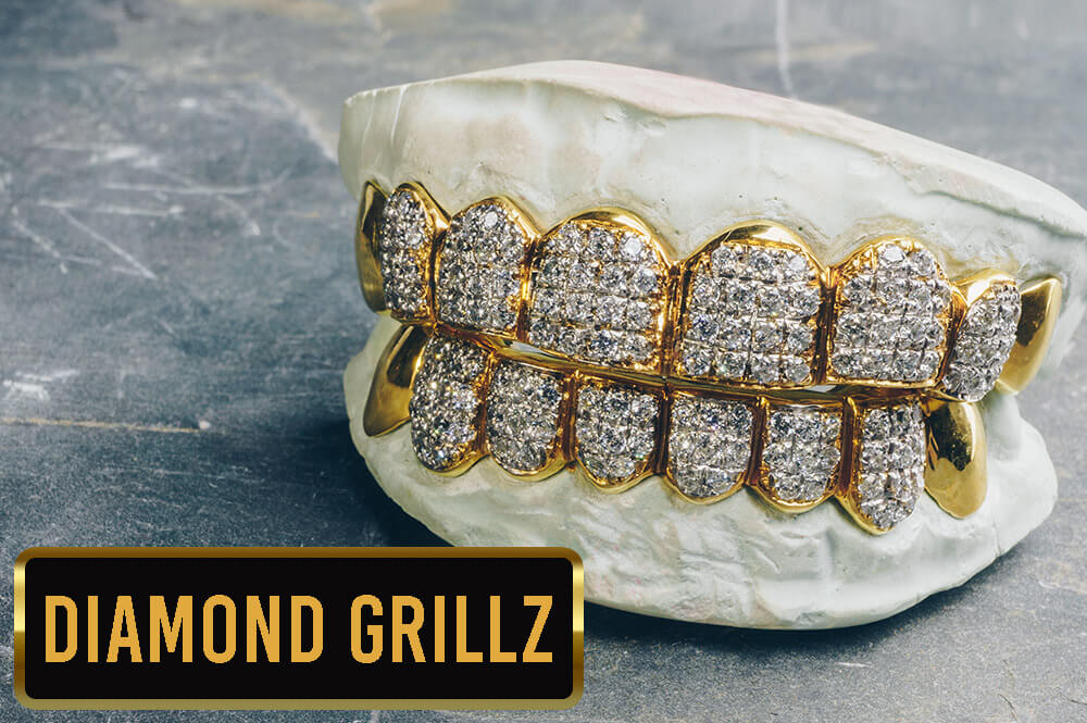 Diamond Grillz Collection from Custom Gold Grillz