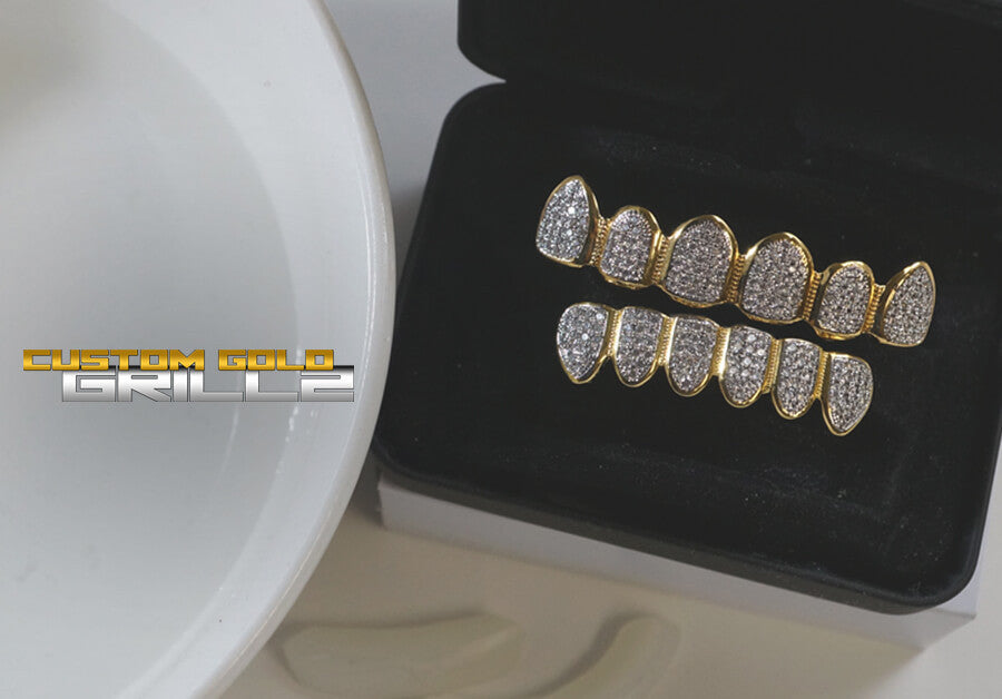 Gold Plated Grillz vs Solid Gold Grillz Pros and Cons of Both