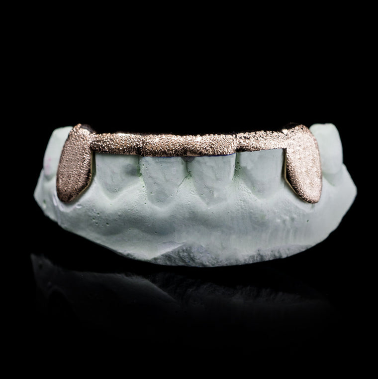 [CUSTOM-FIT]  Solid Gold Diamond Dust 6 Teeth Connecting Bridge Grillz Bar