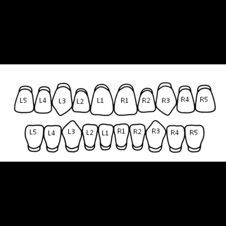 .925 Solid Sterling Silver Single Bottom Custom-Made Tooth Grillz Diagram with Parts