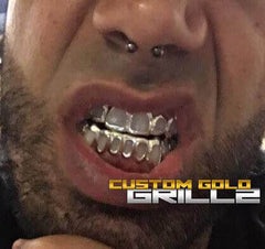 Solid Gold Open Face Custom-Made Grillz Worn by a Model