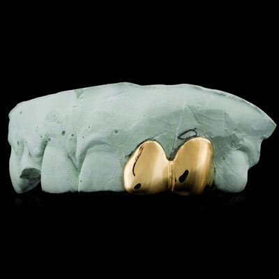 [CUSTOM-FIT] SOLID GOLD DOUBLE CAP TOOTH GRILLZ