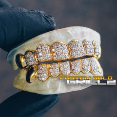 [CUSTOM-FIT] Fully Iced Grillz (Straight Setting)