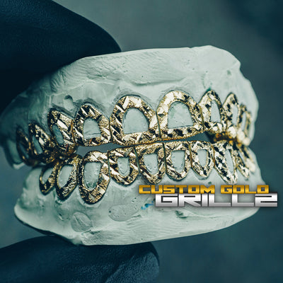 [CUSTOM-FIT] Solid Gold Open Face Grillz