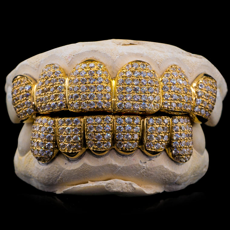 [CUSTOM-FIT] Solid Gold Iced Out Natural Diamond Grillz