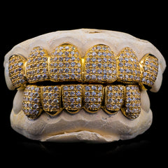 [CUSTOM-FIT] Solid Gold Fully Bustdown Iced Out Grillz