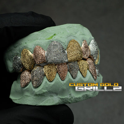[CUSTOM-FIT] Tri-Color Diamond Dust Grillz