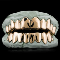 Solid Gold Custom-Made Grillz Main