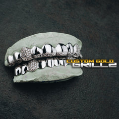 [CUSTOM-FIT] Diamond Cut & Diamond Dust Tips with Iced Fangs Grillz