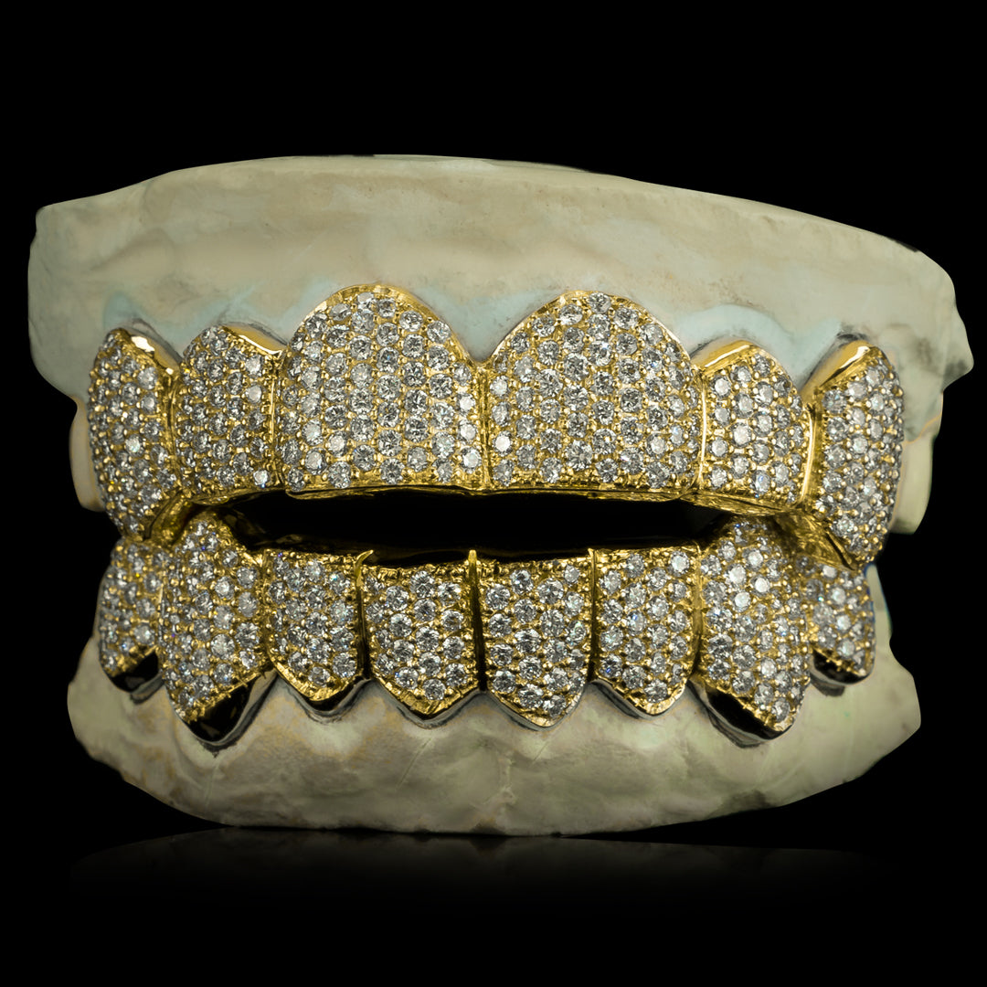 [CUSTOM-FIT] Solid Gold Natural Diamond Zigzag Setting Grillz