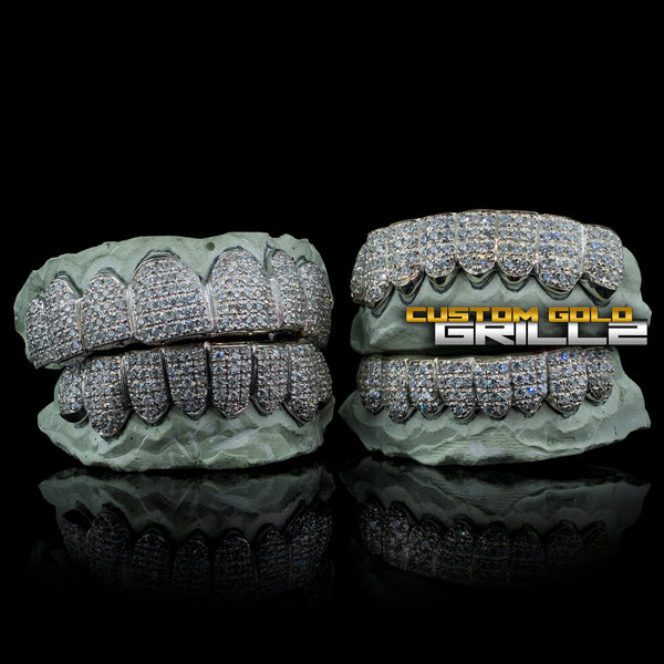 [CUSTOM-FIT] Solid .925 Sterling Silver Fully Bustdown Iced Out Grillz