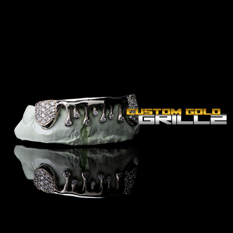 [CUSTOM-FIT]  Solid Iced Drip Grillz