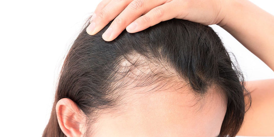What is Alopecia? Is there a cure?