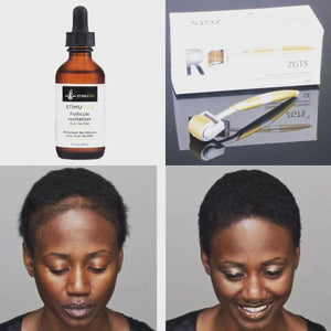 Follicle Revitalizer Hair Growth - Stimugro