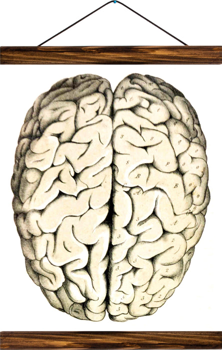 Human brain, reprint on linen - Josef und Josefine