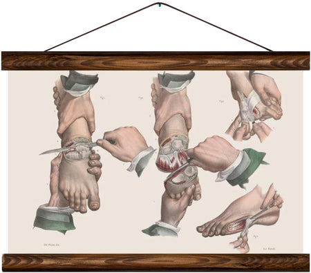 Foot surgery methods, reprint on linen - Josef und Josefine