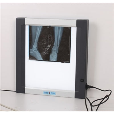 HSX X-RAY Film Viewer