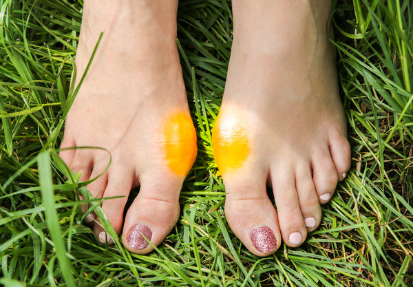 Ways to ease bunion pain