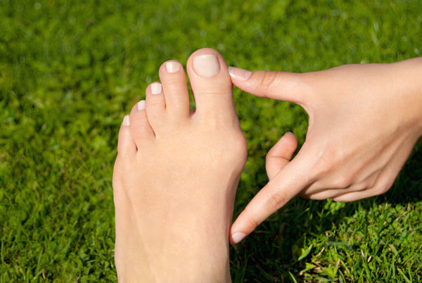 Support thongs for Bunions