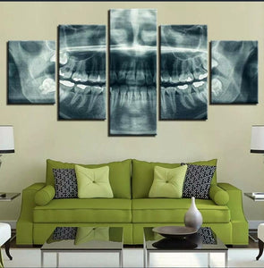Jaw Xray Canvas Print 5 Pieces