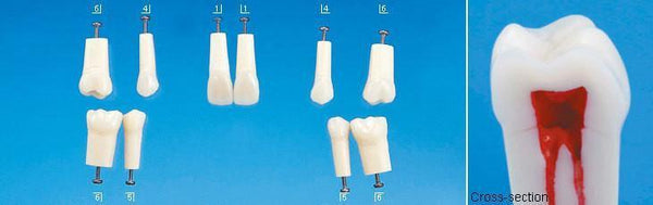A22-200 (4.6) 30 - Lower Right 1st Molar Composite Resin Teeth with Hollow Pulp Kilgore Teeth Nissin-A22-200#30-Kilgore Int