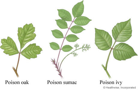 diagram of poison ivy, poison oak, and poison sumac