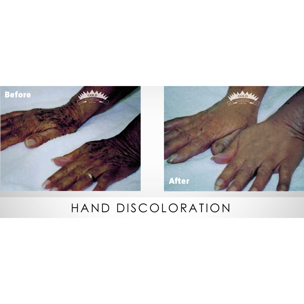 Hands Discoloration Kit - Gold Cosmetics & Skin Care