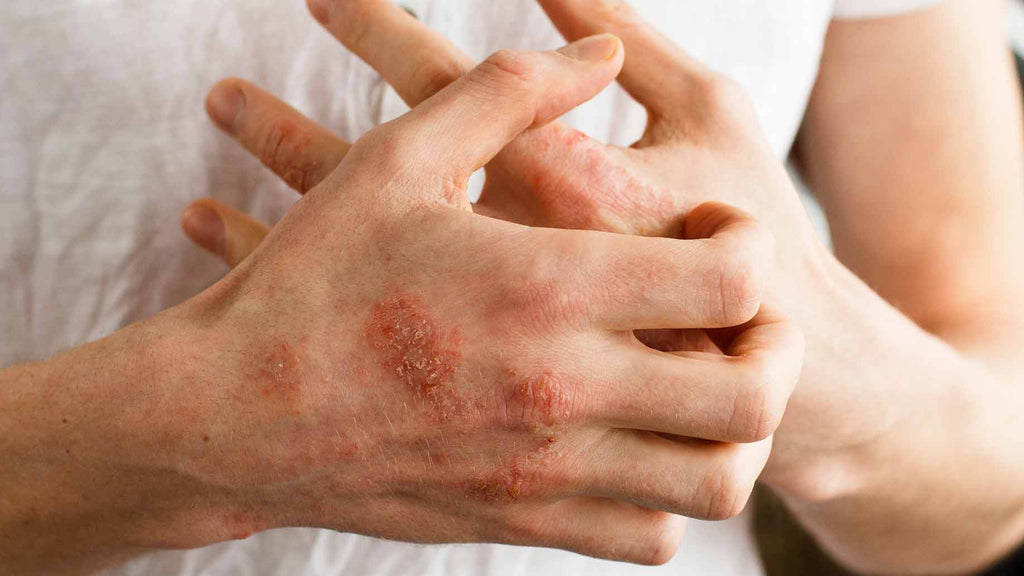 Top 7 tips to prevent and heal eczema naturally