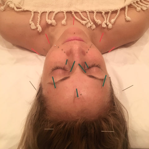 LAPS founder, Lauren, receiving facial acupuncture from Samantha