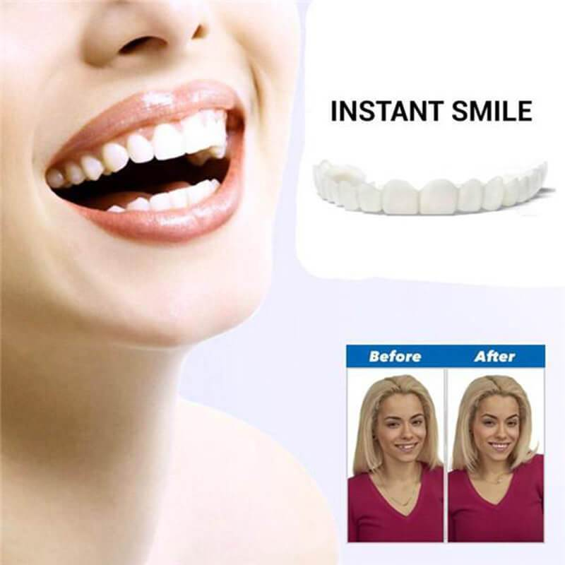 SMILE VENEER (Upper & Lower Included)