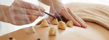 TCM Supplies NZ | Moxibustion
