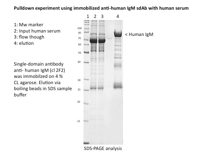 Anti-human IgM single-domain antibody