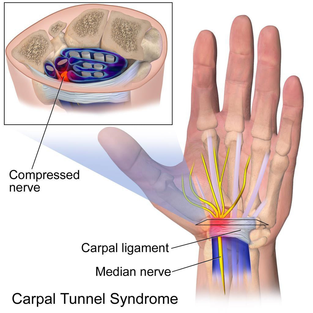 Carpal Tunnel Syndrome, and how to manage it-Essential Wellness