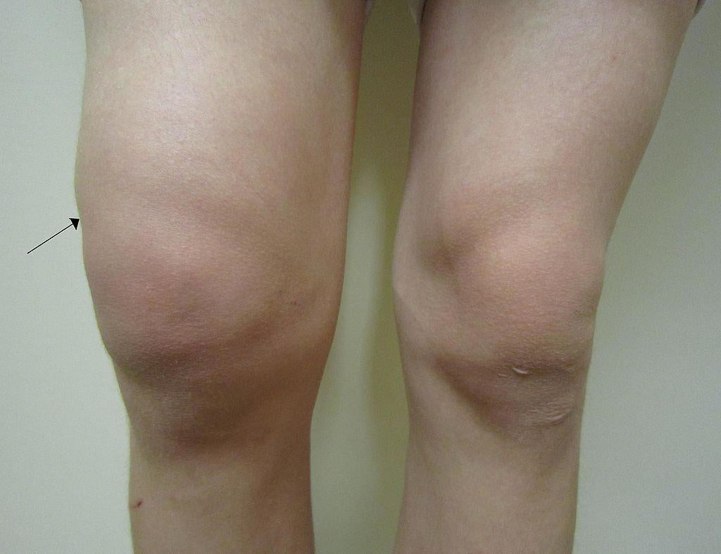 Improving Patella Pain and Swelling-Essential Wellness
