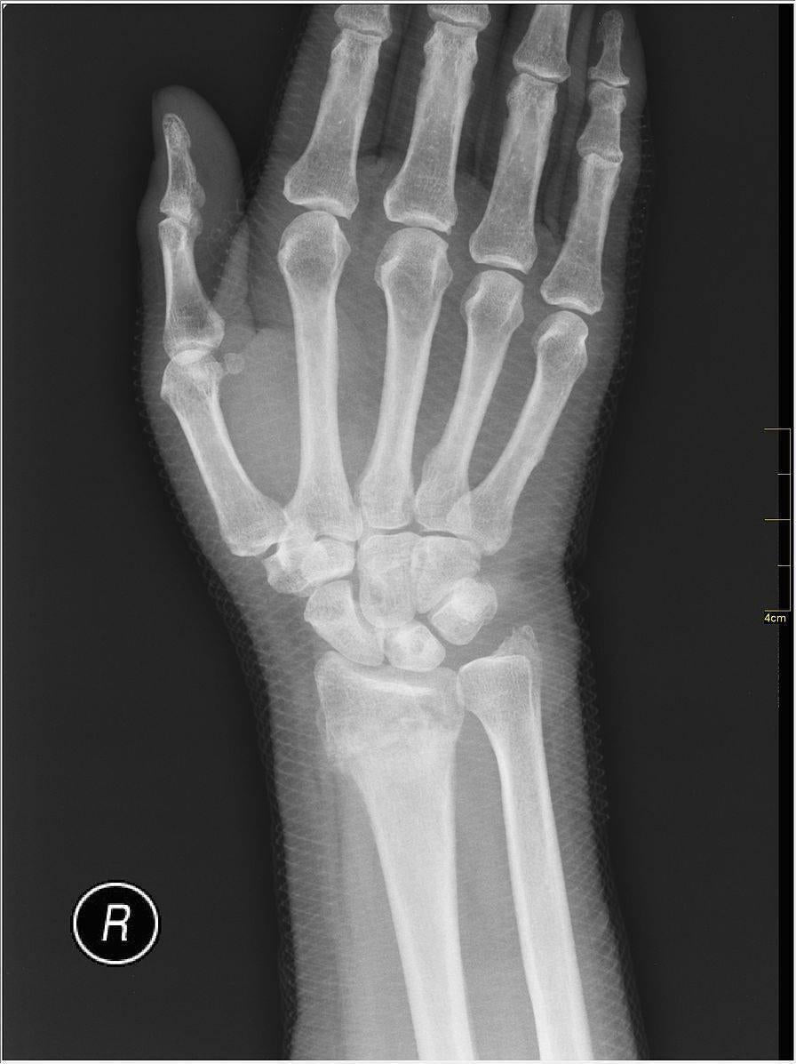 Using a Support after Wrist Fracture-Essential Wellness