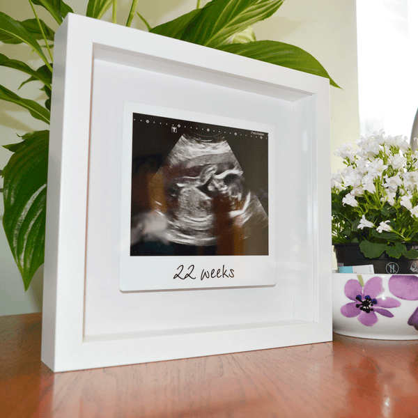 Framed floating metal baby scan print Pregnancy Announcement - My ...
