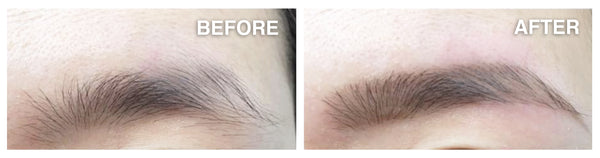 the CLINIC's signature Brow Envy/Eyeliner embroidery treatment