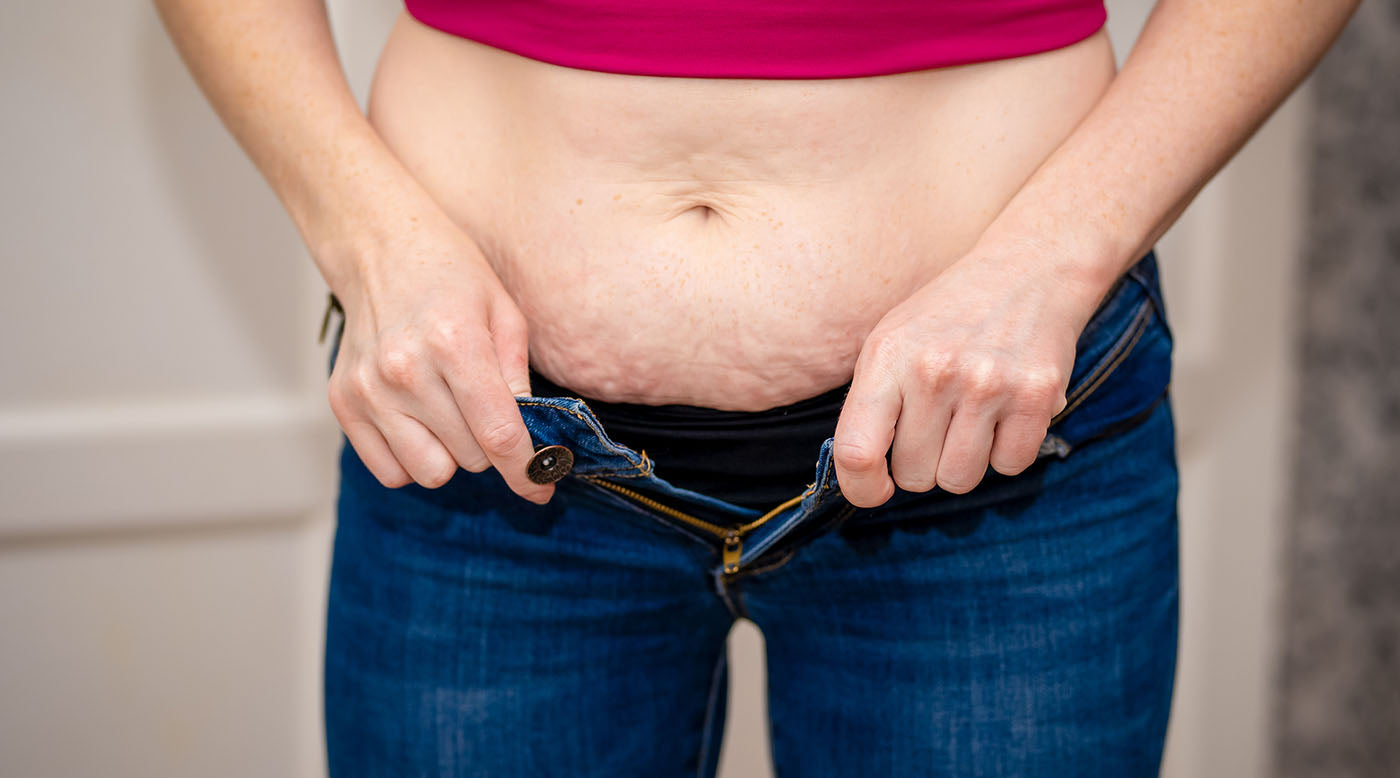 Woman with belly fat trying to zip pants