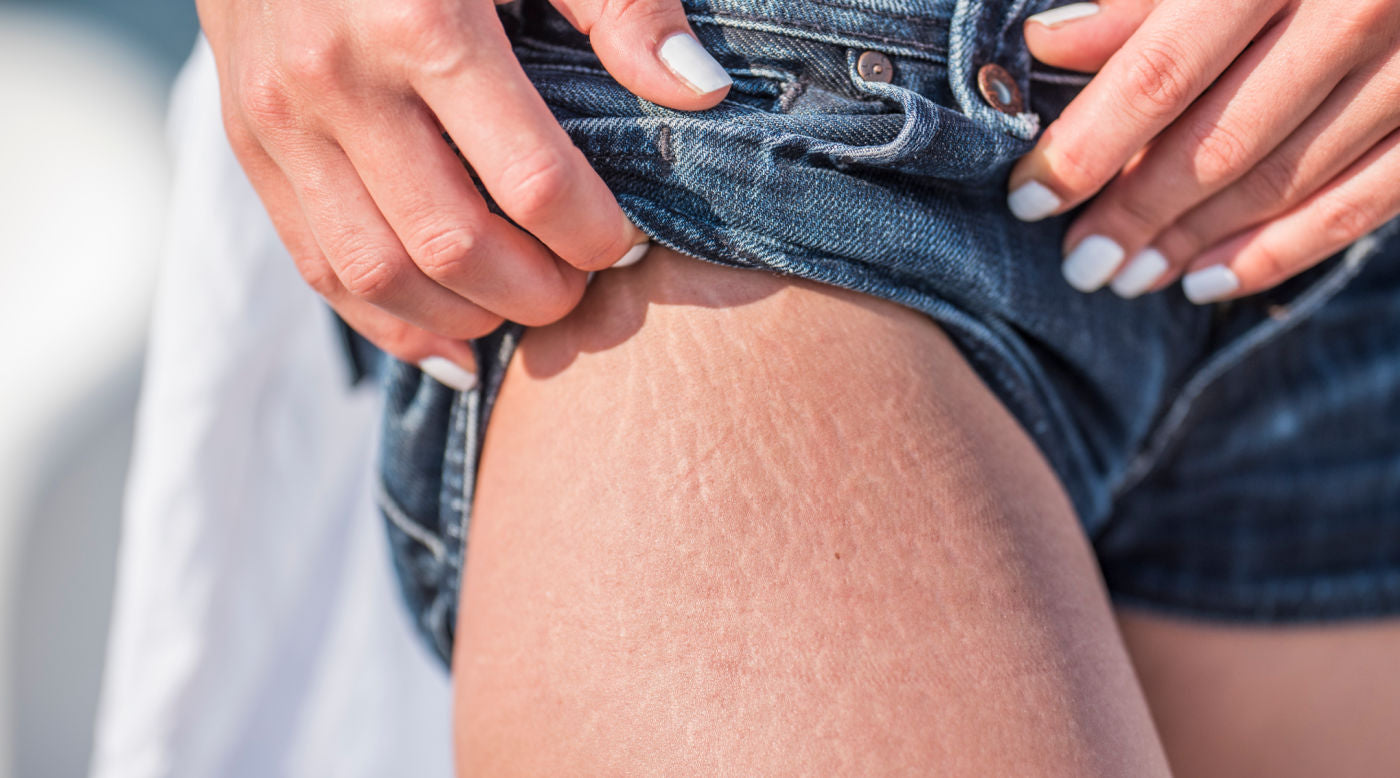 cellulite on woman's leg