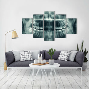 Dental X-Ray - 5 Panel Canvas Art Set
