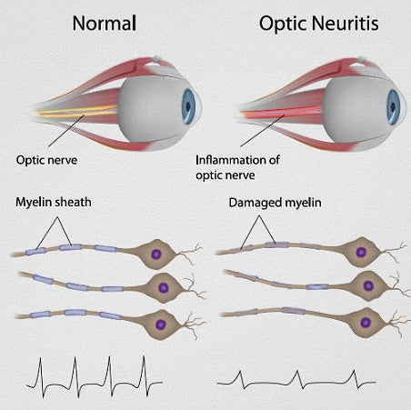 optic-neuritis-blurry-vision